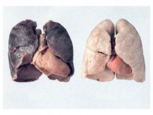 polmoni da fumo